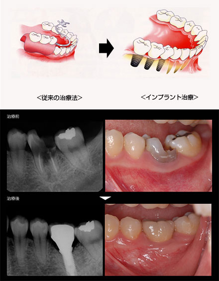 臼歯部インプラント治療