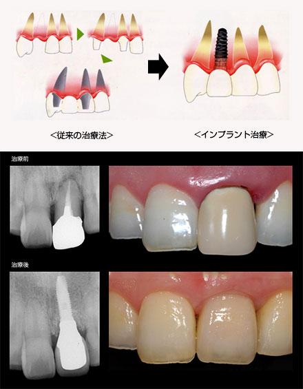 前歯部インプラント治療