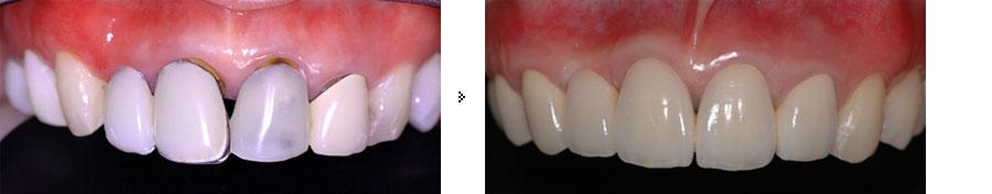 歯科形成外科+セラミックスクラウン(PFMクラウン)
