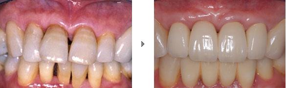 歯周外科 + 矯正 + セラミックスクラウン(PFMクラウン)
