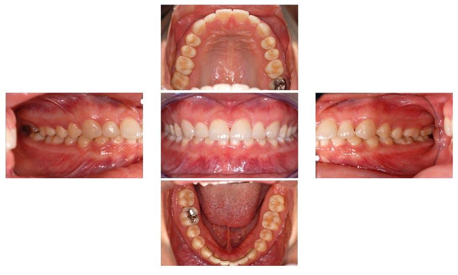 治療終了.治療後は審美性だけではなく咬み合わせも改善されています。
