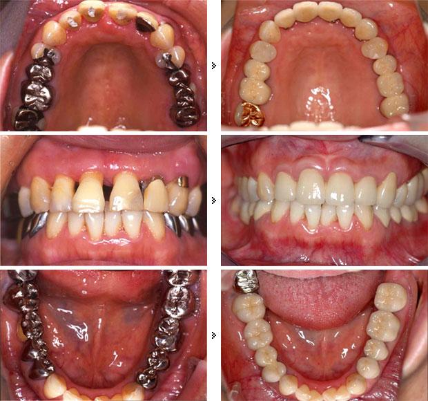 <全顎的総合治療> インプラント + 歯周病治療 + 部分矯正 + 補綴