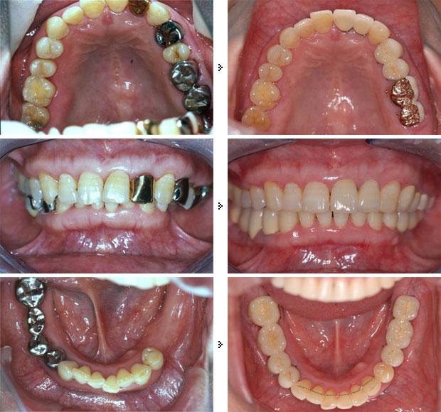 <全顎的総合治療> インプラント + 歯周病治療 + 矯正 + 咬み合わせ治療 + 補綴