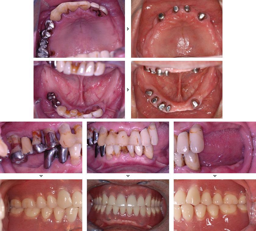 <前顎的総合治療> 総義歯(アタッチメント)